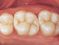 Tooth Colored Fillings - After