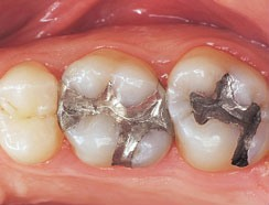tooth colored fillings - before