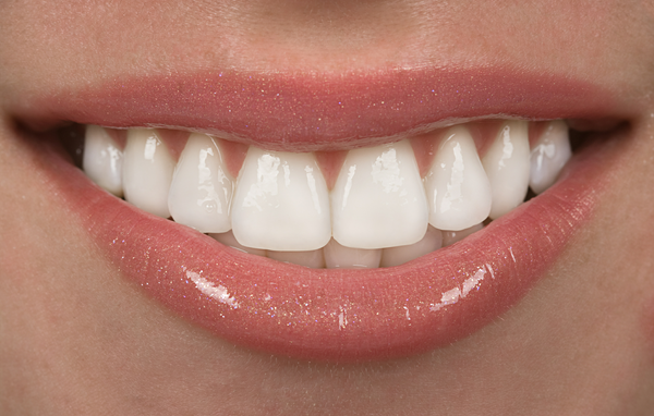 Beautiful porcelain veneers Birmingham AL