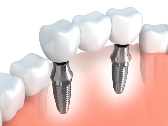 Multiple Dental Implant