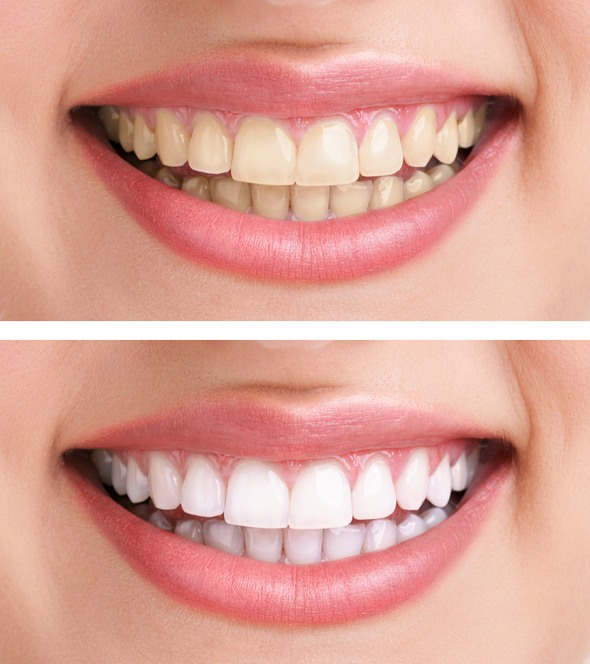 Teeth Whitening Birmingham Dentist