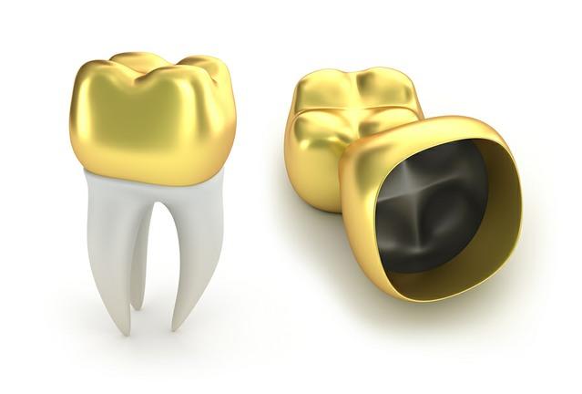 Golden Dental Crowns dentist birmingham