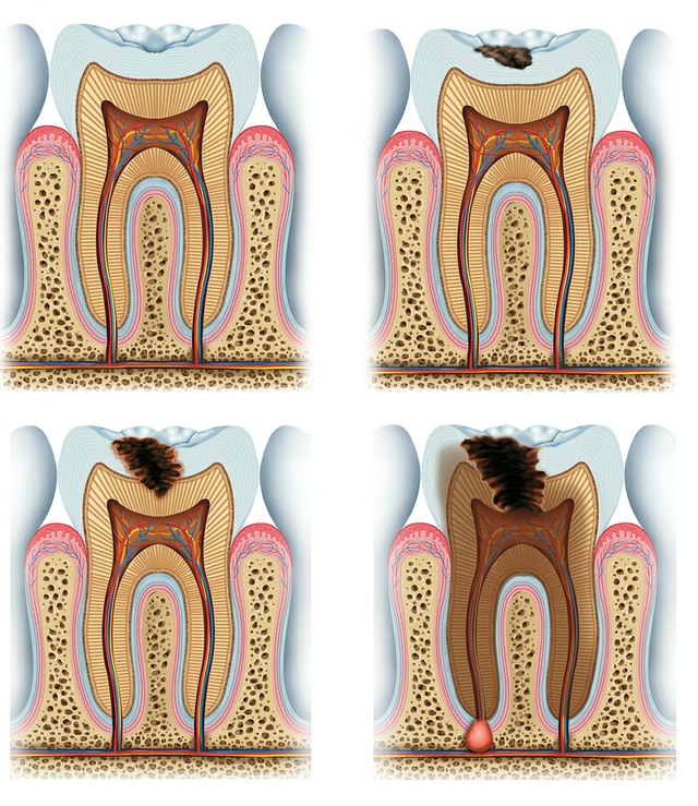 Endodontics Dentist Birmingham